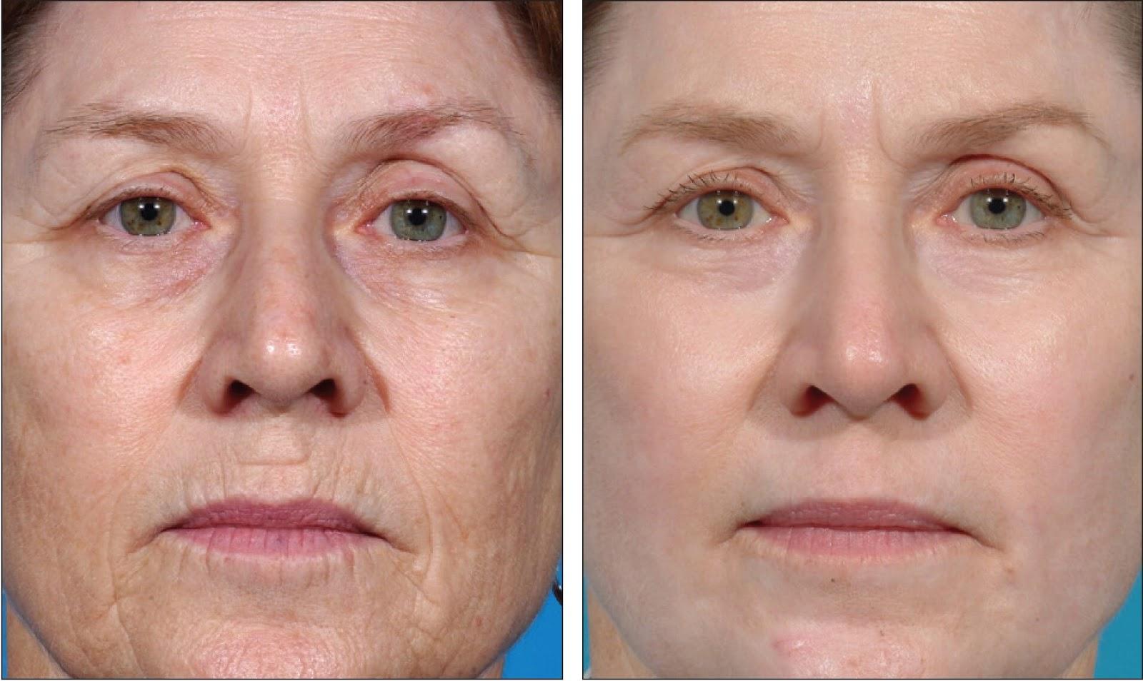 карбокситерапия лица фото до и после одном